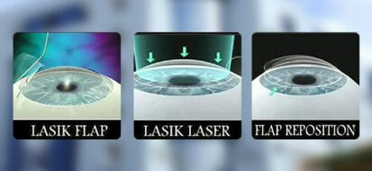 Taking Proper Care Of Your Eyes Before and After LASIK Treatment