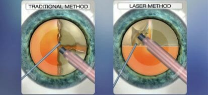 Know About the Difference Between Traditional and Laser Cataract Surgery