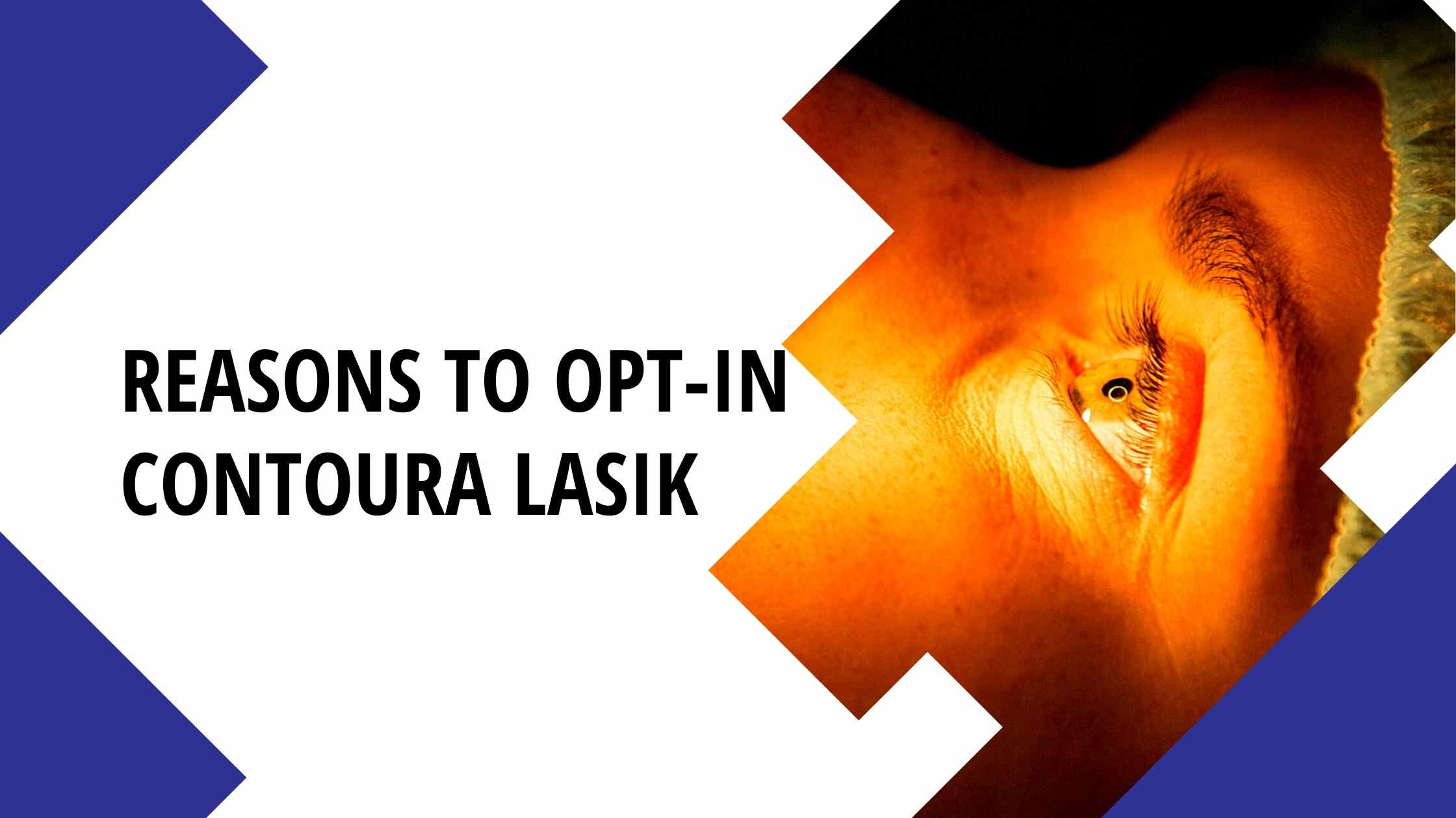 Reasons to opt-in Contoura Lasik