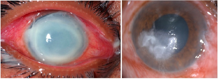 Corneal Infection treatment & Care in Eye foundation
