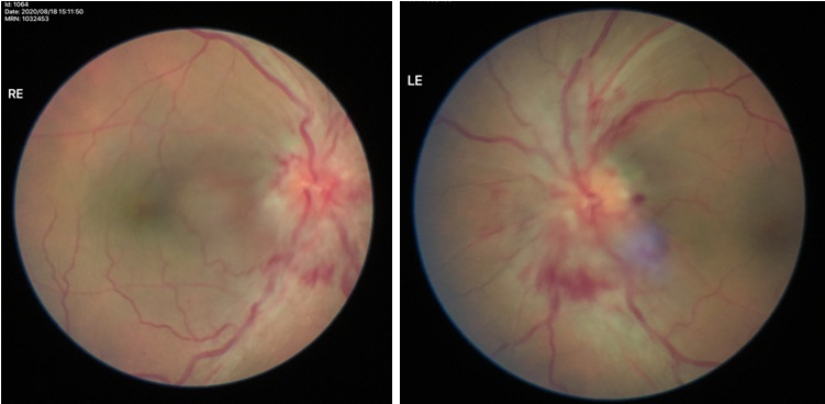 Optic nerve Swelling Treatment in Eye Foundation