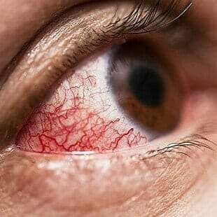 uveitis treatment